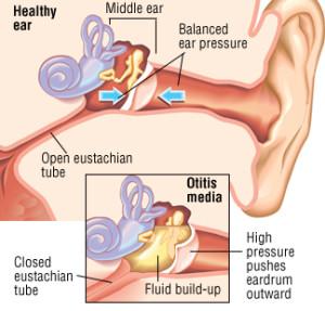 Inner Ear Infection